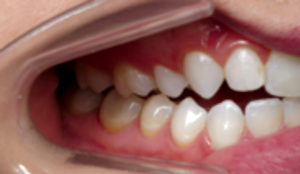 Anterior open bite developed after extractions