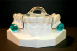 Myofunctional therapy utilizing a Myobrace appliance (TMJ-Mouth Breather Version from Myofunctional Research Co.), was begun after nasal surgery and the anterior open bite was closed in three months without return of symptoms and now can sleep through the night