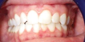 Airway Centered Dentistry