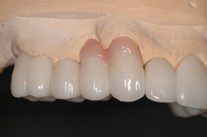 Right side restorations with layered pink porcelain (shade G4).
