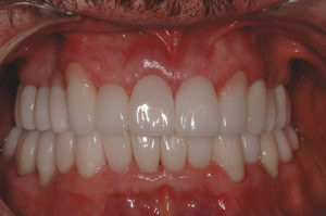 Full arches retracted view in occlusion. Good gingival symmetry, no crossbite on left side, pink porcelain masking out receded areas.