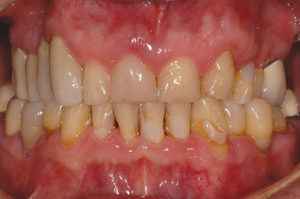 Retracted view: Uneven gingival display, unsightly crowns, restorative patchwork, discoloration, recession and ridge defect on Maxillary right side, generalized wear.