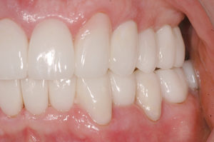 Mx left side; changing the canine into a lateral incisor and the bicuspid into a cuspid.