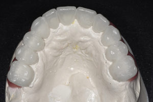 Mx occlusal view.