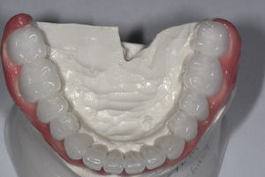 Mn occlusal view.