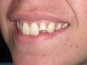 A 23-year-old female presented with fractured tooth #10