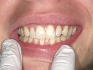 The final result (Fig. 13) was designed to work with the lower misaligned occlusion and provide a very nice final, conservative aesthetic result in a single visit without the need to reduce the remaining tooth structure significantly.