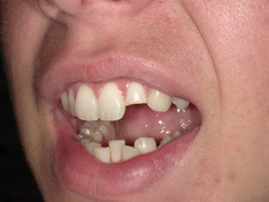 When evaluating the occlusion (Figs. 3 & 4), it was obvious that there was need for orthodontic correction of the occlusion.