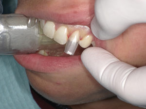 The matrices were then trimmed back in the incisal areas to make room for the cannula of the bioactive restorative material