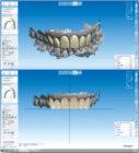 3D Digital Smile Treatment Plan