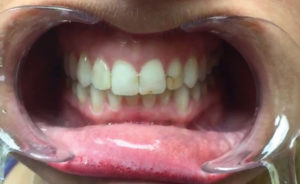 Failing restorations on teeth #12-22.