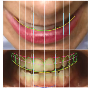 Digital smile design creation using the DSD protocol.