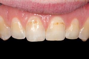 A 27-year-old male presented to our office with pitted and stained incisors