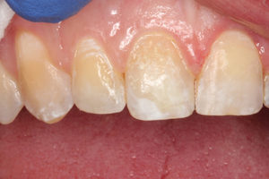 The right central incisor was built up first using the general purpose shade A-3 composite