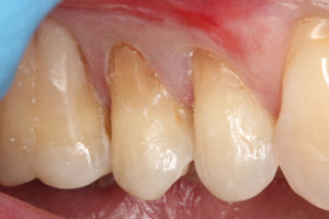 The first layer of dentin material was used