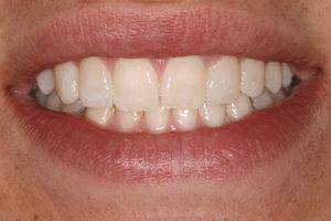 Then the left canine and lateral incisor were restored in a similar fashion