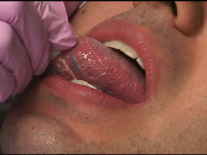 Visual and tactile palpation of the dorsum, lateral borders and the ventral surface of the tongue are required