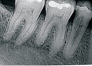 Pre-op X-ray of internal resorption and distal decay. December 2013.