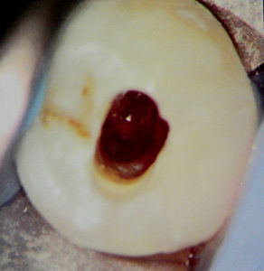 Pre-op photo of internal resorption by Dr. Thompson. February 2014.