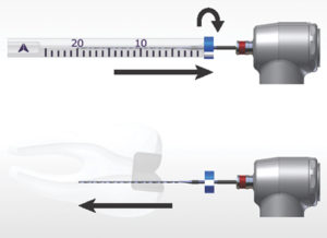 The Finisher is placed in rotation mode and removed from the tube by applying lateral motion to ensure it remains straight. Once the straight file is inside the canal, the rotation is turned on and the file inserted incrementally into the canal the irrigant in the chamber is constantly replenished.