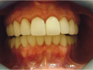 Gingival inflammation due to impingement of crown margins into biological width.