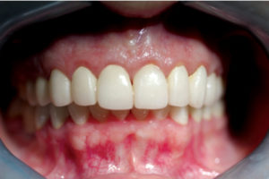 Post-op six weeks after final crown cementation. Note significantly improved gingival tone and stippling.