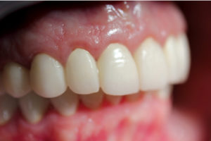 Excellent gingival tone. Note stippling.