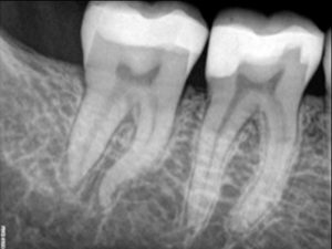 Pretreatment of mandibular second molar with abrupt apical mesial canal curvature.
