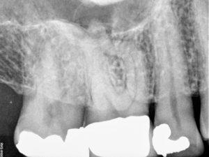 Pretreatment of maxillary first molar.