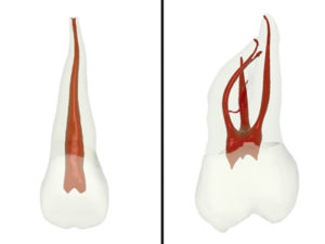 """Note toothatlas.com reveals natural width of central is about a third the width of the root while the DB canal of the maxillary molar is about one fifth the width of the root. The shaping width goal of endodontics is simply to give Nature back her original dimensions. I call this """"Maximally Appropriate Endodontics."""" The ferrule location that matters is not even mesial- distal; it is buccal-lingual. Shaping width claims of various Ni-Ti systems should be evaluating CBCT buccal and lingual remaining tooth; not mesial-distal!"""
