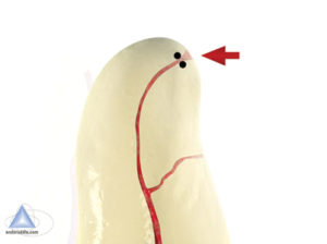 Arrow points to the 2 apical dots that represent the minimal physiologic constriction.