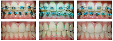 Clinical photographs and predicted outcomes of orthodontic and non-orthodontic patients using PlaqueHD.