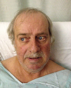 Clinical photograph: Patient upon attempted straight gaze. Note eyes fixed to right.