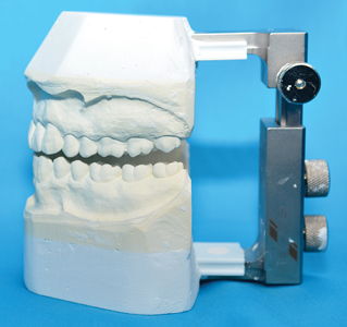 Not All Occlusal Splints Are Created Equally Oral Health Group