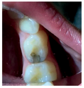 Silver diamine fluoride and application of self-curing glass ionomer to restore the tooth and reduce staining. Courtesy of Dr. Josh Wren.