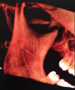 a) Panoramic and b) Cone beam slice showing needle location.