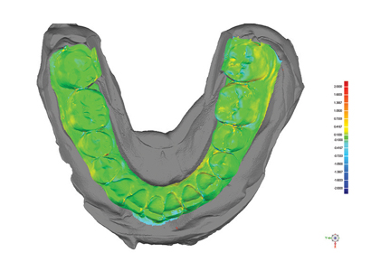 3D ultrasound scan of full arch plaster model (green) superimposed on optical scan (gray) of same model for metrology analysis showing an average margin of error under 100 microns.