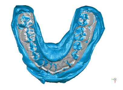 3D ultrasound scan of full arch plaster model (gray) superimposed on optical scan (blue) of same model.