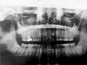 Pre-extraction radiograph obtained from the general dentist.