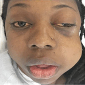 The patient 5 hours post-extraction of tooth 2.8, presenting with left facial swelling, decreased visual acuity, exophthalmos, sub-conjunctival hemorrhage, and ptosis of the left orbit.