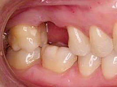 Missing first molar.