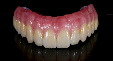 Full Contour Zirconia with anterior porcelain layering final screw retained fixed implant prosthesis (Shaw Laboratories).