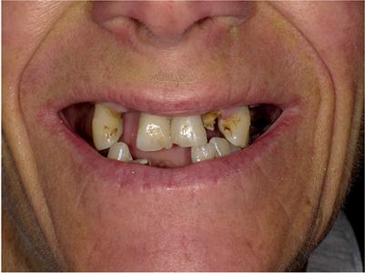 Pre-operative smile photo.