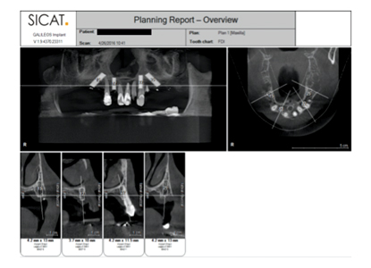 CBCT evaluation of bone anatomy and treatment planning with All-In-1 Arch using Legacy 3 dental implants.
