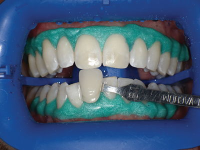 In office whitening is shown being performed after isolating the gingival tissues with a liquid dam to protect from the use of more concentrated hydrogen peroxide solutions.