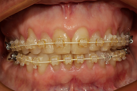 A patient is shown after fixed orthodontic appliances (Six Month Smiles) have been placed to correct generalized minor rotation and crowding by expanding the arches to accommodate the mesio-distal widths of the teeth.
