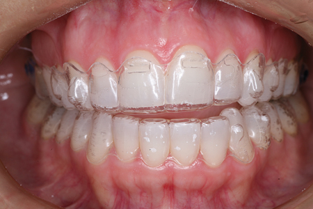 A patient is shown mid treatment wearing Invisalign clear aligners for a full orthodontic correction of an anterior open bite.