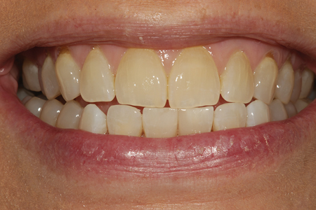 A smile view of the completed diastema closure.