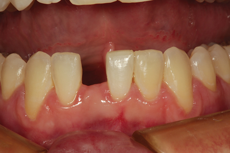 A preoperative view of a patient missing a mandibular right central incisor after completing orthodontic treatment. The patient is 16 years old and not a candidate for grafting and implant placement at this time.