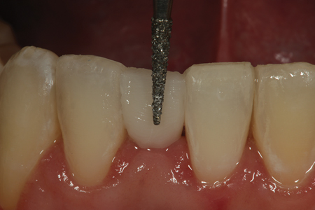"After placement of the ""dentin portion"" of the pontic on the facial and lingual aspects of the bonded fiber, a course diamond is used to shape and create a roughened surface for addition of the ""enamel"" increment of composite."